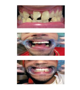 Problem: Decay, broken tooth, upper front left tooth is out of line Solution: Instead of orthodontic work, multiple crowns can be used to correct spacing and reline teeth to give proper alignment and give the 'Golden Smile'