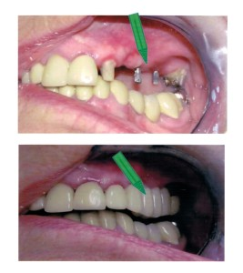 Problem: Four consecutive teeth are missing. Solution: Mini implants were placed to act as anchors for bridge in conjunction with healthy teeth to avoid torquing and increased pressure on existing teeth and help keep bridge in proper place.