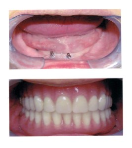 Problem: Patient afraid to use denture in public due to movement and coming out during meals. Solution: Depending on bone and bite strength, 4-8 mini implants are inserted on top and lower sides to anchor denture to mouth and Mini Implants being more cost effective than Conventional Implants.