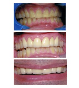 Problem: Decay, wearing of teeth due to chipping or grinding of teeth. Solution: Veneers & Crowns, depending on severity of chipping & decay.