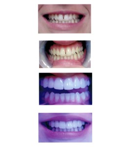 Problem: Uneven spacing between teeth. Solution: 6-8 veneers/crowns placed (even number of veneers are placed to keep teeth symmetrical and visually pleasing), whitening of the bottom teeth brought up the top teeth 3 shades by in-office Boost Whitening