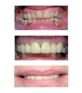 Problem: Filling and bonding was breaking down and recession of gums. Solution: Crowns and veneers placed in conjunction with whitening.
