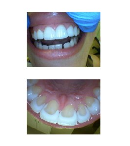 Problem: Similar issue of improper spacing between teeth (as seen between bottom teeth) Solution: Six Veneers were placed to correct spacing and similar treatment for bottom teeth was followed after