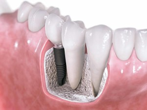 dental, goldstein dental, implants, conventional implants, facts, dentist, teeth, tooth, smile, perfect, mini implants, minis
