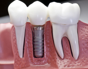 Conventional Implant, implants, goldstein dental, perfect smile, smile, mini implants