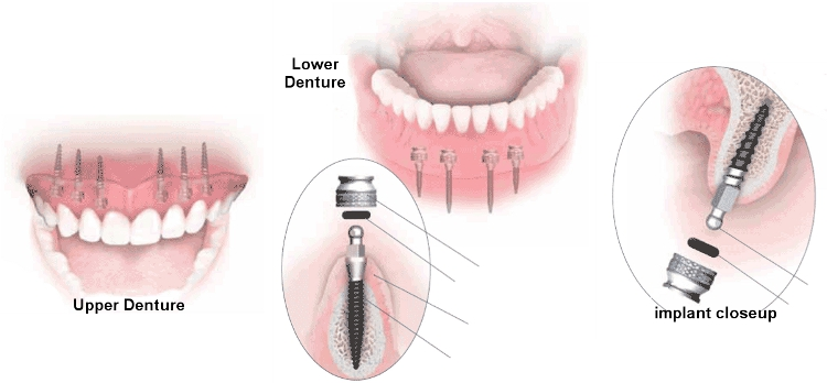 Dentures, upper denture, lower denture, maxillary denture, minis, mini implants, mandibular denture, anchor