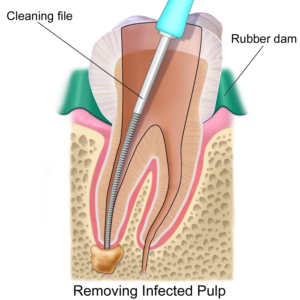 Infected tooth in process of a root canal