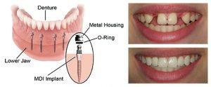 Goldstein Dental Mini Implants
